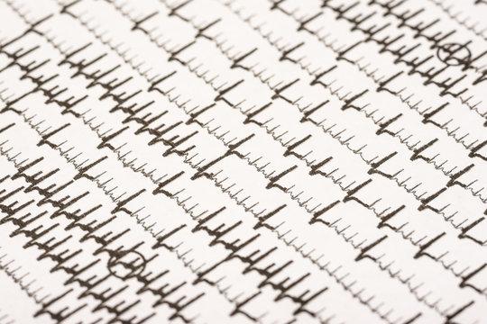 Extrasystoles And Atrial Fibrillation On Electrocardiogram