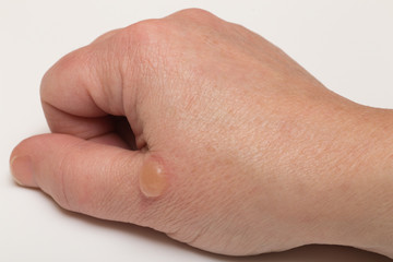 Blister from burn on hand