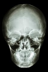asian people's skull (Thai people)