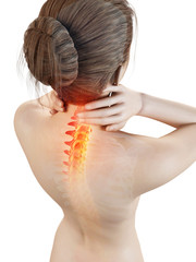 woman having a painful neck - visible spine