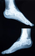 Xray of a human ankle