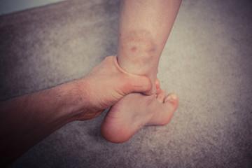 Man grabbing woman's bruised leg