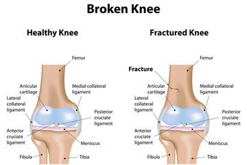 Broken Knee Labeled Diagram