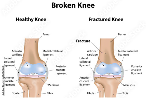 broken knee labeled diagram stock photo and royalty free images on rh fotolia com Broken Bone Drawing Hand Bones Diagram