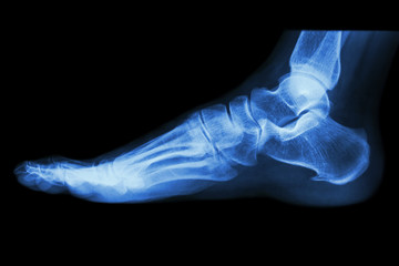 X-ray normal human's foot lateral