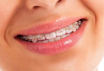 Details of teeth