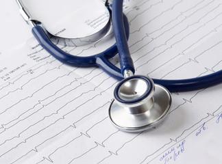 Stethoscope on the cardiogram.