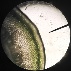 Microscopic transverse section   stem x100 showing xylem, phloem