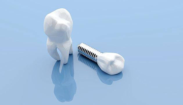 Dental implant and teeth