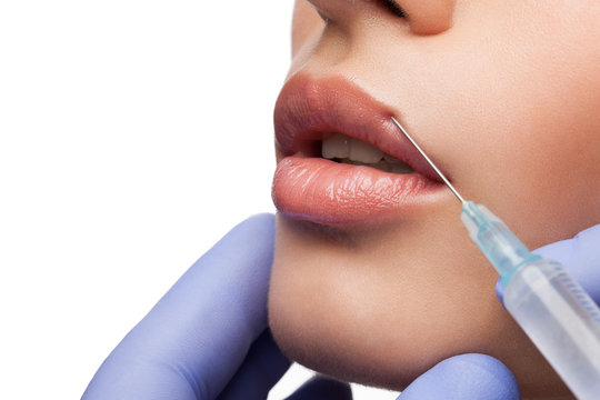 Cosmetic injection in woman's lip