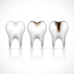 Teeth realistic set
