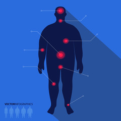 Fat man silhouette, pain point. Vector medical infographics