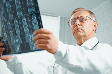 Older doctor examines MRI image