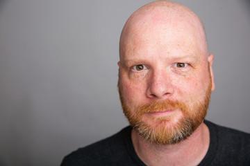 Crazy eyed bald man with a beard Wall mural