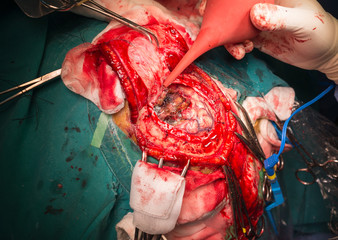craniectomy in case of brain tumor at frontal lobe