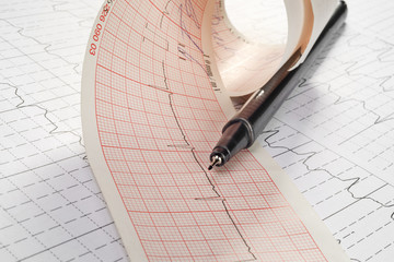 cardiogram and technical pen