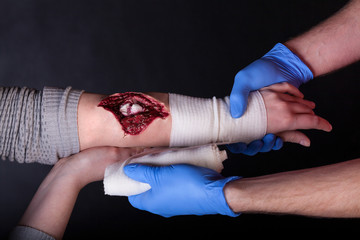 Dressing a wound