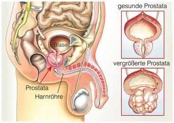 Prostata.Vorsteherdrüse.Vergrößert