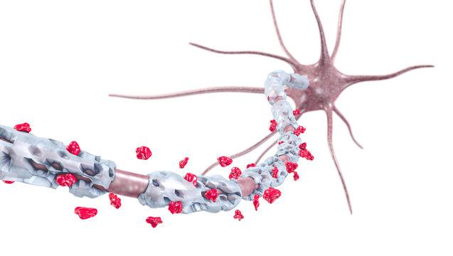 Entzündung und Vernarbung der Myelinscheide - 3D Illustration