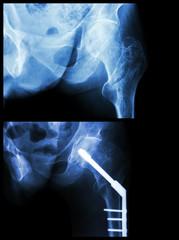 Intertrochanteric fracture left femur (fracture thigh's bone)