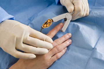 Doctor attaching pulse oxymeter to patient's finger, close-up, side view