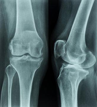 X-rays of leg