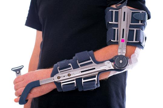 man has broken arm