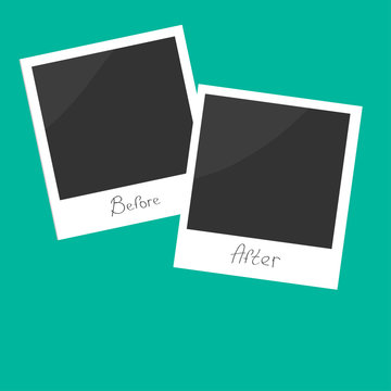 Before after instant photo. Flat design