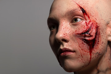 Woman with the gash prepared for operation