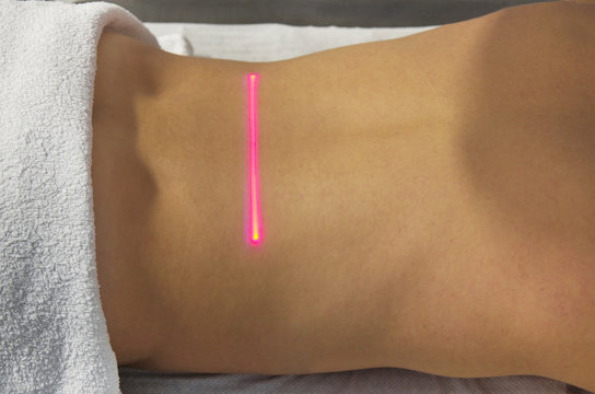 Laser Therapy on a back of an young girl