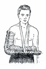 Emergency splinting of forearm fracture