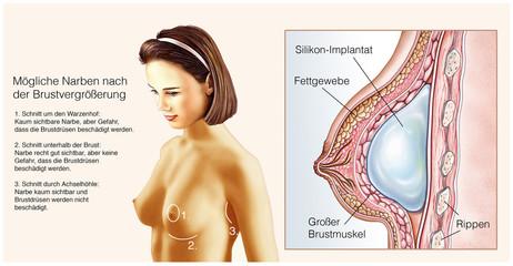 Brustimplantate Implantatfllung Silikonimplantate