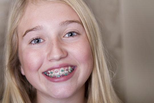 teen girl with braces on her teeth