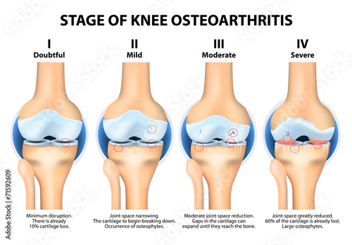 an analysis of the prevalence symptoms causes and treatment of osteoarthritis