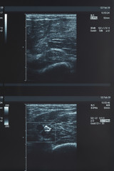 X-ray, muscle ultrasound