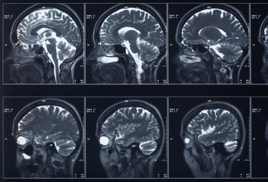 X-ray head and brain