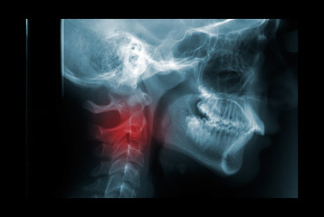 X-ray of the cervical spine painful area