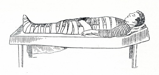 Emergency splinting of thigh fracture