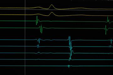 Heart cardiodiagram tracing
