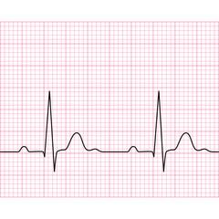 Illustration of medical electrocardiogram - ECG on chart paper