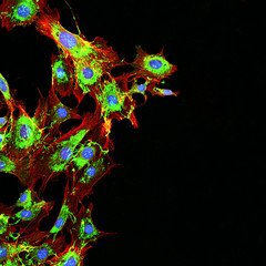 Microscopy imaging of metastatic cancer cells