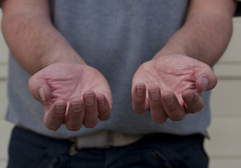 Male holding out two hands begging