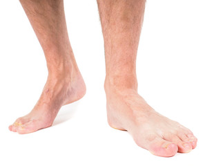 Male person with hairy legs, walking barefooted
