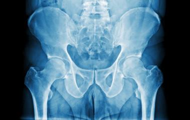 Abdomen X-Ray