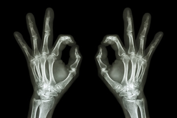 X-ray hands with OK sign