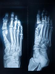 X-ray feet