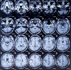mri scan image