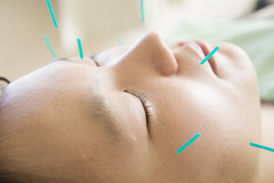 Women acupuncture is stuck in face