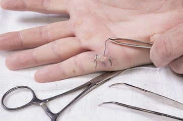 Close up of removing medical thread from wound