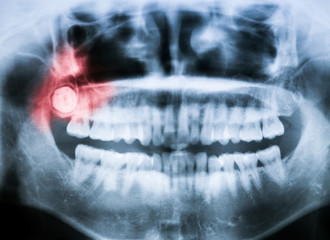 Closeup x-ray of impacted wisdom tooth